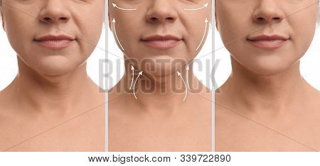 Mature Woman Before And After Plastic Surgery Operation On White Background, Closeup. Double Chin Pr