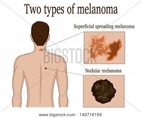 Two types of skin melanoma on the neck and back of a man