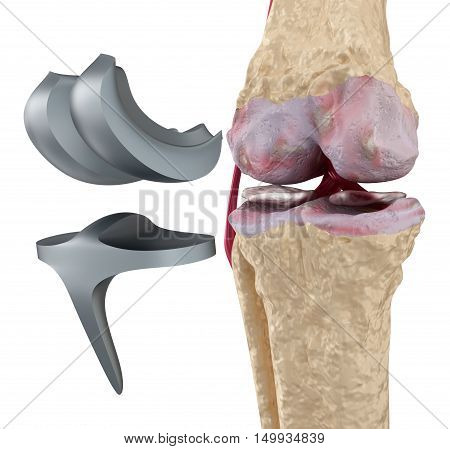 Knee and titanium hinge joint. Isolated on white