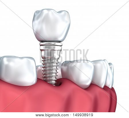 Tooth human implant Medically accurate 3D illustration white style