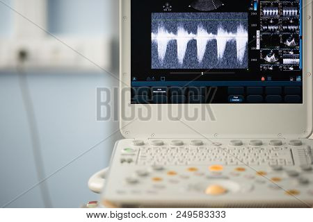 On The Screen Of The Ultrasound Machine, The Image Of The Right Ventricular Outflow Tract With The E