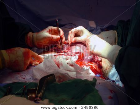 C-Section Stitches