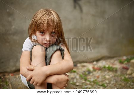 Street Photo Of Upset Blond Girl Orphan With Long Matted Hair And Holen Knees In The Dirty Alley, Sh