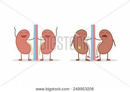 Healthy And Sick Kidneys Isolated On White Background Vector Illustration