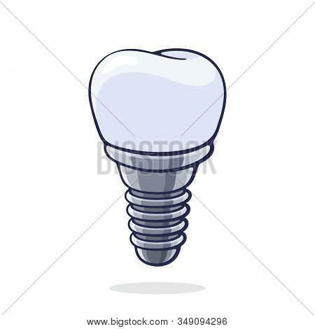 Vector Illustration. Dental Implant Of Human Tooth. Fixture Prothesis In Dentistry. Symbol Of Somato