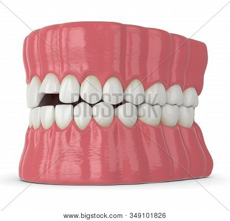 3d Render Of Jaw With Broken Incisor Upper Tooth Over White Background