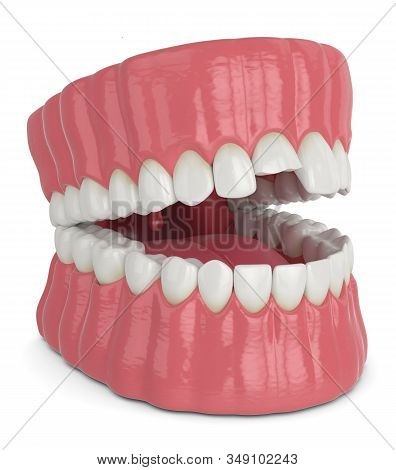 3d Render Of Opened Jaw With Broken Incisor Upper Tooth Over White Background