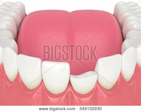 3d Render Of Lower Jaw With Broken Incisor Tooth Over White Background