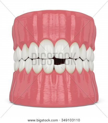 3d Render Of Jaw With Broken Incisor Lower Tooth Over White Background