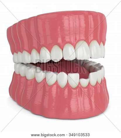 3d Render Of Opened Jaw With Broken Incisor Lower Tooth Over White Background
