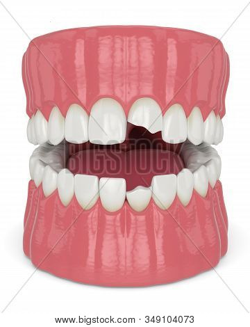 3d Render Of Jaw With Broken Incisors Teeth Over White Background