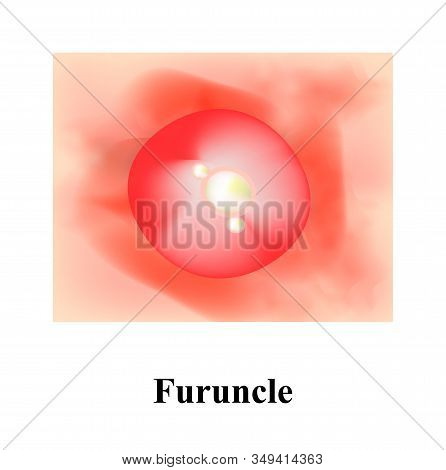 Pustules On The Skin. Cystic Acne. Pimples On The Skin. Furuncle. Infographics. Illustration.