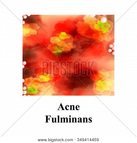 Pustules On The Skin. Acne Fulminans. Cystic Acne. Pimples On The Skin. Furuncle. Infographics. Illu