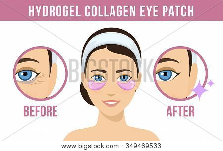 Before And After Hydrogel Eye Patches. Cosmetic Collagen Eye Patches. Pink Eye Patches For Beauty An