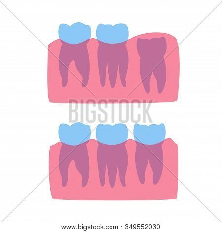 Vector Isolated Illustration Of Human Wisdom Tooth In Gum Anatomy. Human Jaws Model With Molar Teeth