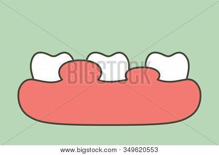 Unhealthy Teeth Because Gingivitis Or Gum Disease With Abscess, Gum Is Swollen - Dental Cartoon Vect