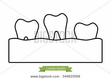 Loose Tooth, Tooth Is Fall Out Of The Gum - Dental Cartoon Vector Outline Flat Style Cute Character