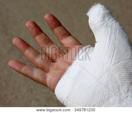 Hand Plastered After A Fracture Due To A Fall On  Bicycle