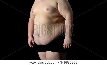 View To Fat Belly Man, Metabolic Disorder, Stomach Resection, Liposuction