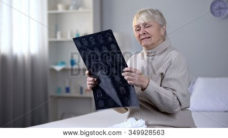 Depressed Old Lady Looking At Brain X-ray And Crying, Incurable Disease, Health