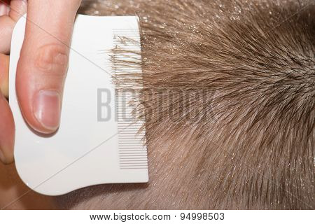 Searching For Lice On A Childs Head