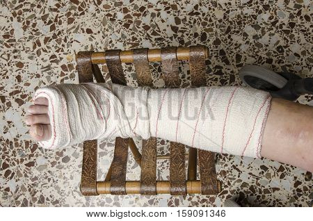 Woman With Her Broken Leg. Arm In A Cast.