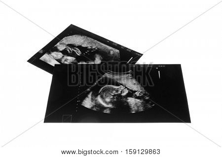 Ultrasound pictures of baby on white background