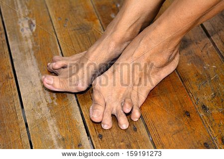 Old woman's foot deformed from rheumatoid or gout arthritis