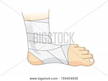 Ankle and foot with white elastic bandage for injury treatment. Illustration about first aid and medical.