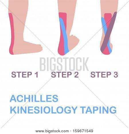 Achilles kinesiology taping. Сorrect a sticking plasterю Vector illustration.