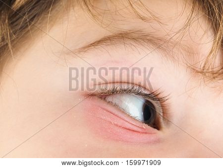 Pink Eye On A Boy Child, At Closeup With Brown Eye And Brunette Hair