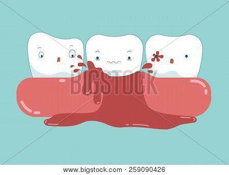 Gingivitis Of Dental And Blood Vector, Dental Concept.