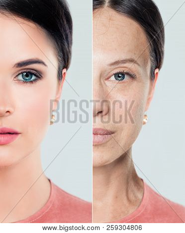 Perfect Female Face With Problem And Clean Skin, Beauty Treatment And Lifting. Before And After, You