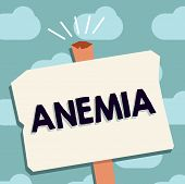 Text sign showing Anemia. Conceptual photo condition where there deficiency of red cells of haemoglobin in blood poster