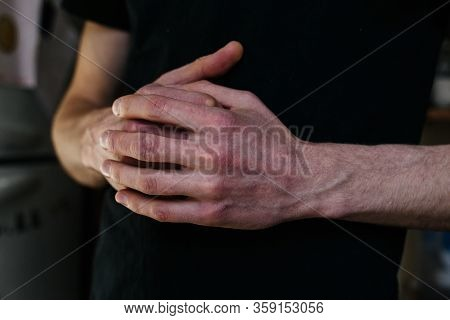 Cracked, Flaky Skin On The Hands. Dermatological Problems Of Psoriasis. Hard, Cracked Skin On The Fi