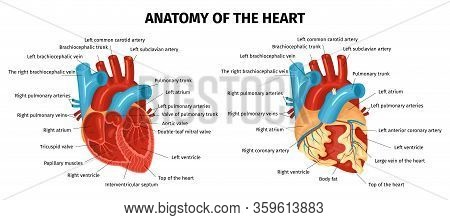 Colored Healthy And Unhealthy Heart With Labeled Parts Flat Set Isolated On White Background Vector
