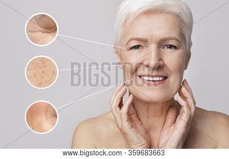Beauty And Skincare. Collage Of Beautiful Senior Woman On Light Background With Zoomed Zones With Sk