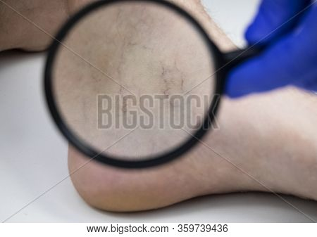 A Man In Consultation With A Vascular Surgeon. A Doctor Examines A Leg With Swollen Veins. Varicose