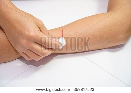 Close Up Old Men's Arms Hand, Upper Limb Or Arm To The Wounded Waiting And Blood And Lesion, Slit Fo