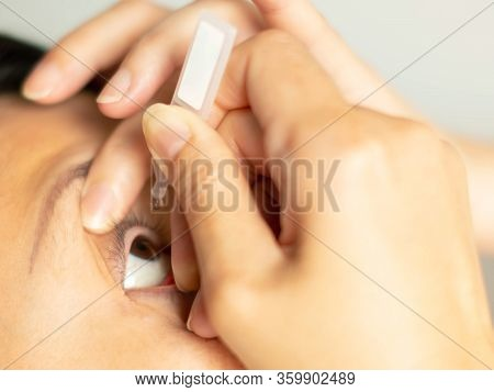 Close-up Of Asian Woman Holds An Artificial Tear Bottle And Drops At An Eye For Recovery The Moistur