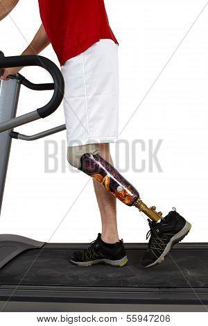 Male Prosthesis Wearer Undergoing Rehabilitation