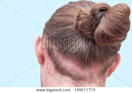 Red psoraitic spot on hairline. Dermatological disease stress seborrhea dermatitis appearance eczema concept. Proven diagnosis of Psoriasis Vulgaris exacerbation on back of man's head and scalp