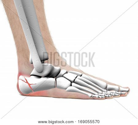 Calcaneus Fracture - Anatomy Male - Studio Photo Isolated On White