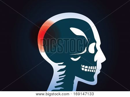 In head of human have a red signal. This illustration about a brain tumor.