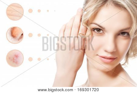 Concept of skin problem of woman face