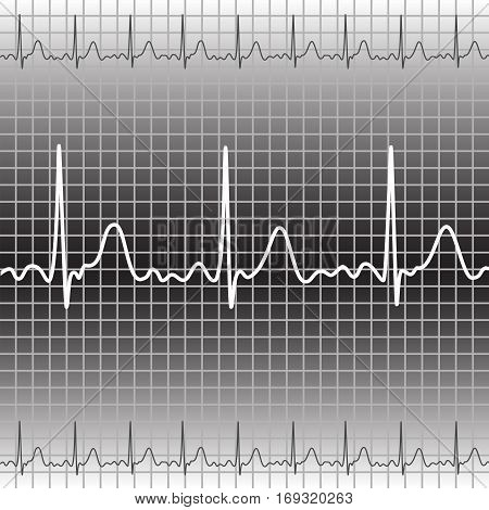 Electrocardiogram in gray and white, vector illustration, eps10