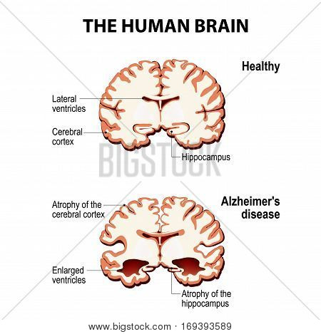 The human brain. Cross section. Healthy and brain with Alzheimer's disease (dementia senility)