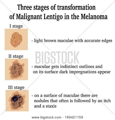 Three stages of transformation of Malignant Lentigo in the Melanoma