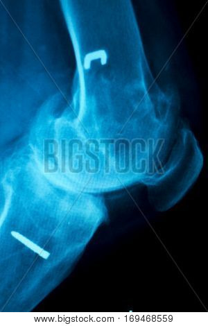 Orthopedic Knee Implant Xray Scan