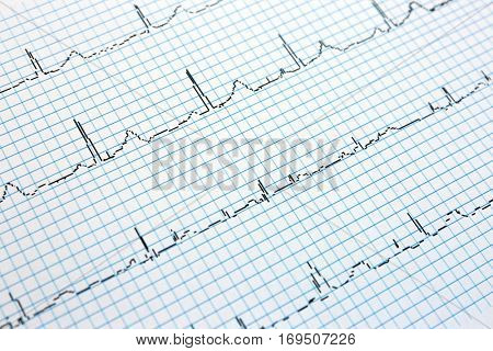 Electrocardiogram in paper form, closeup